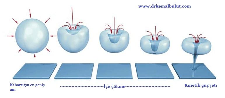 ESWT nin etki mekanizmalarından birisi uygulanan bölgede oluşturduğu kavitasyon etkisidir
