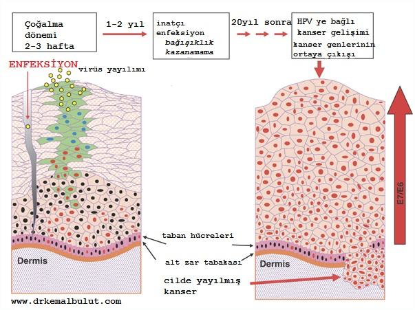 HPV virüsü cilt yoluyla bulaştığında cildin en yüzeyel tabakası olan epidermiste en tabanda bulunan hücreler içinde çoğalır, yüzeye doğru göç ederek, en üst hücrelerde dökülmeye sebep olurken bu hücrelerin içinde kendini de yaymış olur, bağışıklık gelişmez ise uzun süreler sonunda kanser oluşumuna neden olabilir.