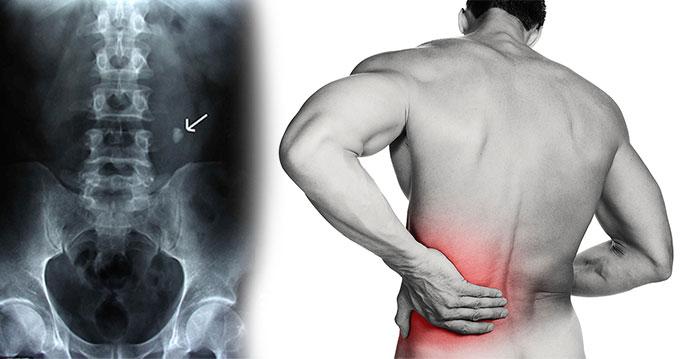kolik ağrılı bir olgu ve radyolojik testte sebep olan üreter taşının görünümü