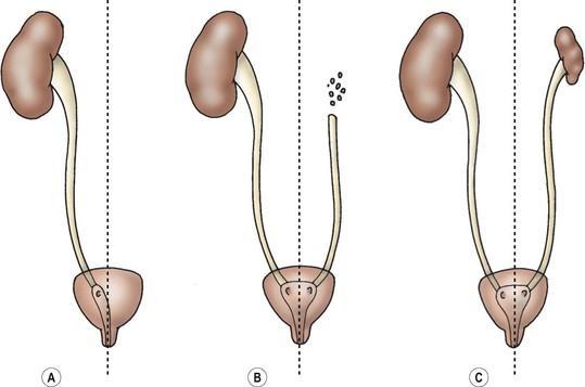 A) Sol böbrek agenezi (yokluğu)  B) Sol böbrek displazisi ( bozuk gelişim ) C) sol böbrek hipoplazisi ( az gelişmişliği )