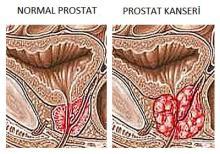prostat kanseri şematik görünüm