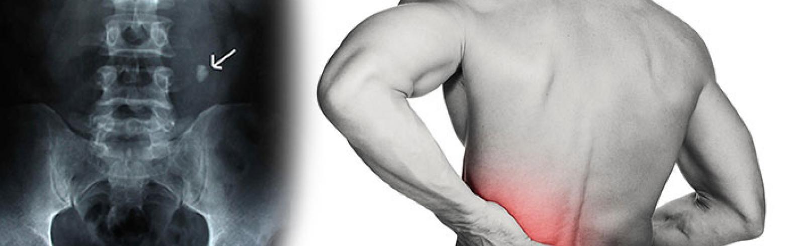 Sol üreterde taş nedeniyle kolik ağrı