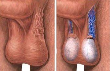 Sol testiste varikoselin şematik görünümü, solda spermatik kordondaki ciltten bile belli olabilen büyük genişlemiş damarlar